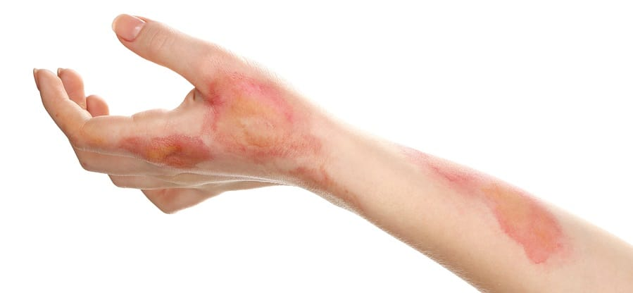 Burns on female hand and forearm