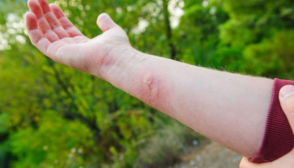 Treat insect bites to prevent infections and allergic reactions