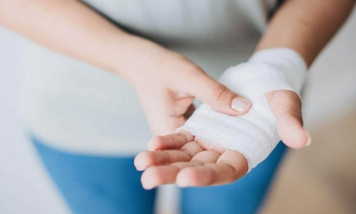woman showing her bandaged left hand