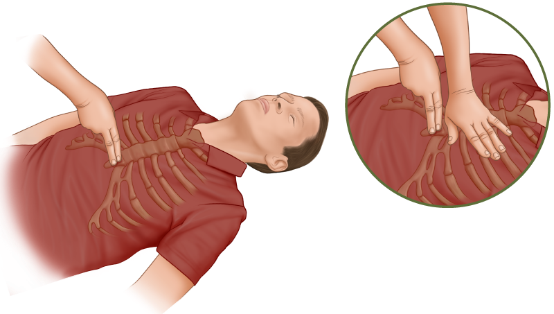 CPR Guide: Chest compressions - positioning your hand