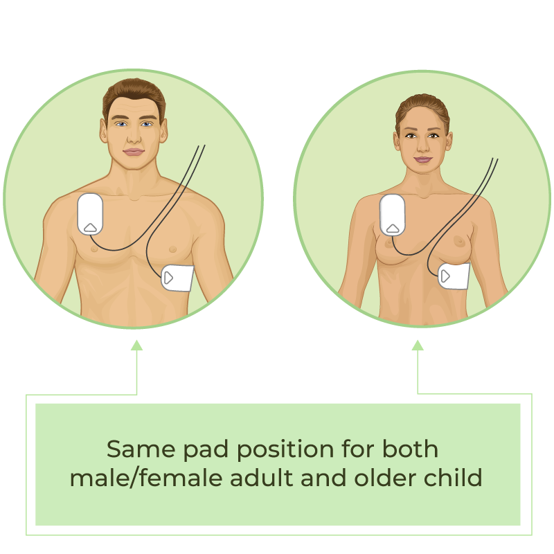 AED pad positions for man and woman