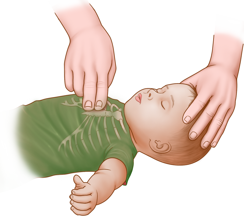 Baby & Infant CPR Guide - chest compressions, hand and finger placement