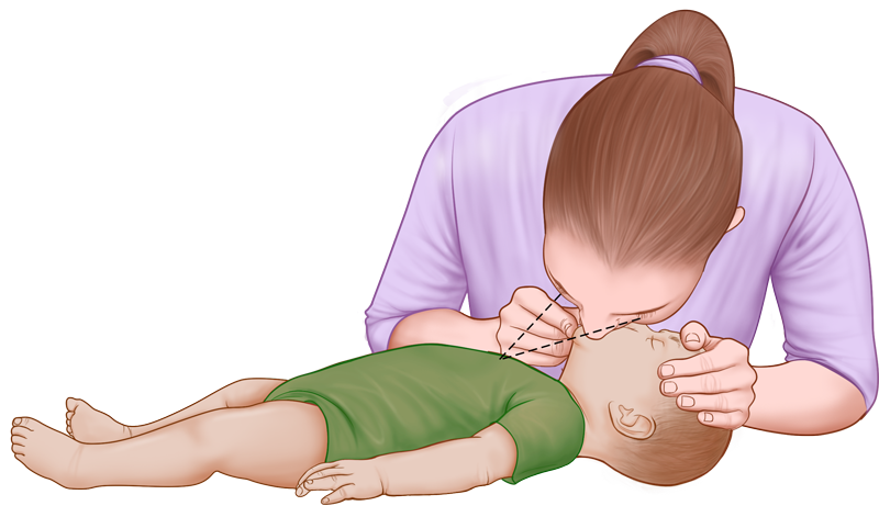 Baby & Infant CPR Guide - mouth-to-mouth