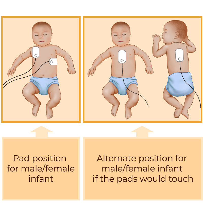 Baby & Infant AED - defibrillator pad positions