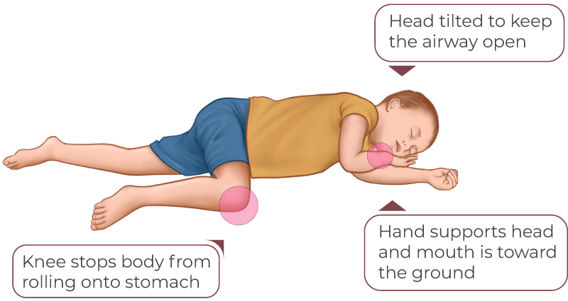 Child Recovery Position