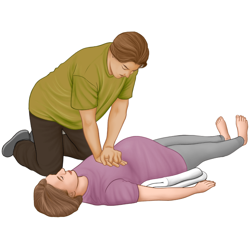 CPR Guide - pregnant woman - chest compressions