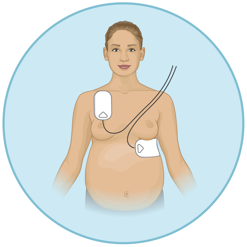 AED for pregnant woman - defibrillator pad positioning