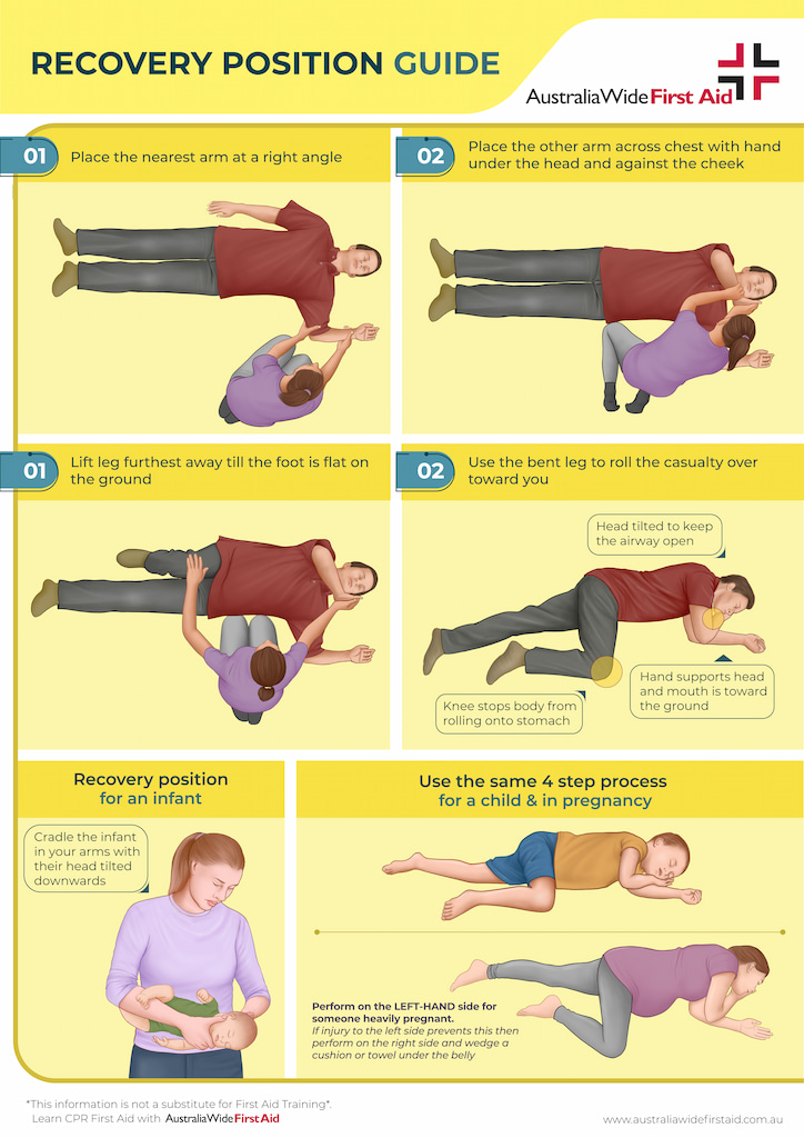 Recovery position for adults - children - infants - and in pregnancy